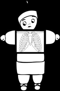 Röntgenbild, x ray , medizinische , gesundheit , knochen , anatomie , medizin , skelett , menschliche , gesundheitswesen , krankenhaus , xray , körper , scannen , diagnose , radiologie , radiologische , verletzungen , brust , radiographie , prüfung , behandlung , patienten , technologie , strahlung , trauma , bild