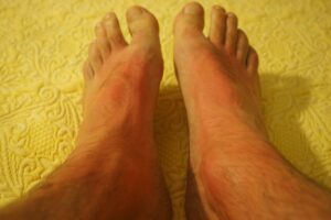 sonnenbrand , füße , haut , rot , verbrannt , gerötet , allergie , hautirritation , körperteil , rötung , sonne , hitze , schmerz , gefahr , hautkrebs , dermatologie , mann, Wundrose