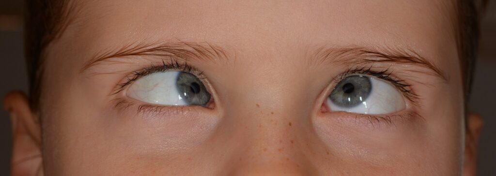 person , schielen , augen , blick , schief , schräg , verwirrt , mensch , kind , mädchen , puppengesicht , gesicht , niedlich , blond , garten , draußen , portrait , nahaufnahme , painting , schielen bei kindern , grimasse